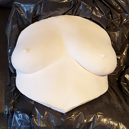 Pre-mastectomy Breast Cast